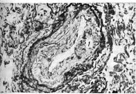 Гипертония малого круга кровообращения
