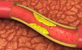 Что нужно знать об атеросклерозе?