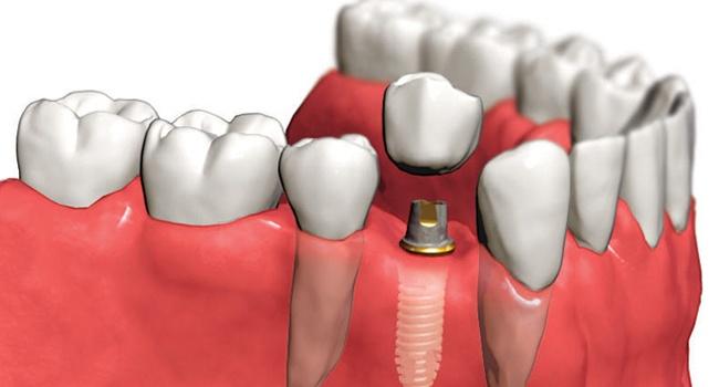 Самый эффективный способ восстановления утраченных зубов