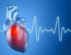Обширный инфаркт сердца
