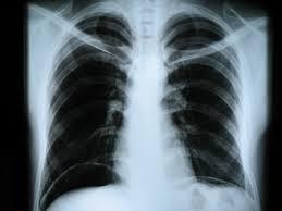 Рентген сердца и сосудов