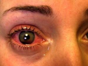 Глазное давление, симптомы