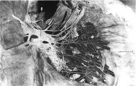 Нервы сердца