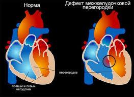 Дефект межпредсердной перегородки: симптомы, диагностика, лечение