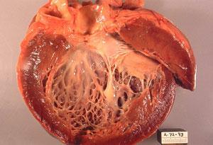 Дилатационная кардиомиопатия: причины, симптомы, диагностика, лечение