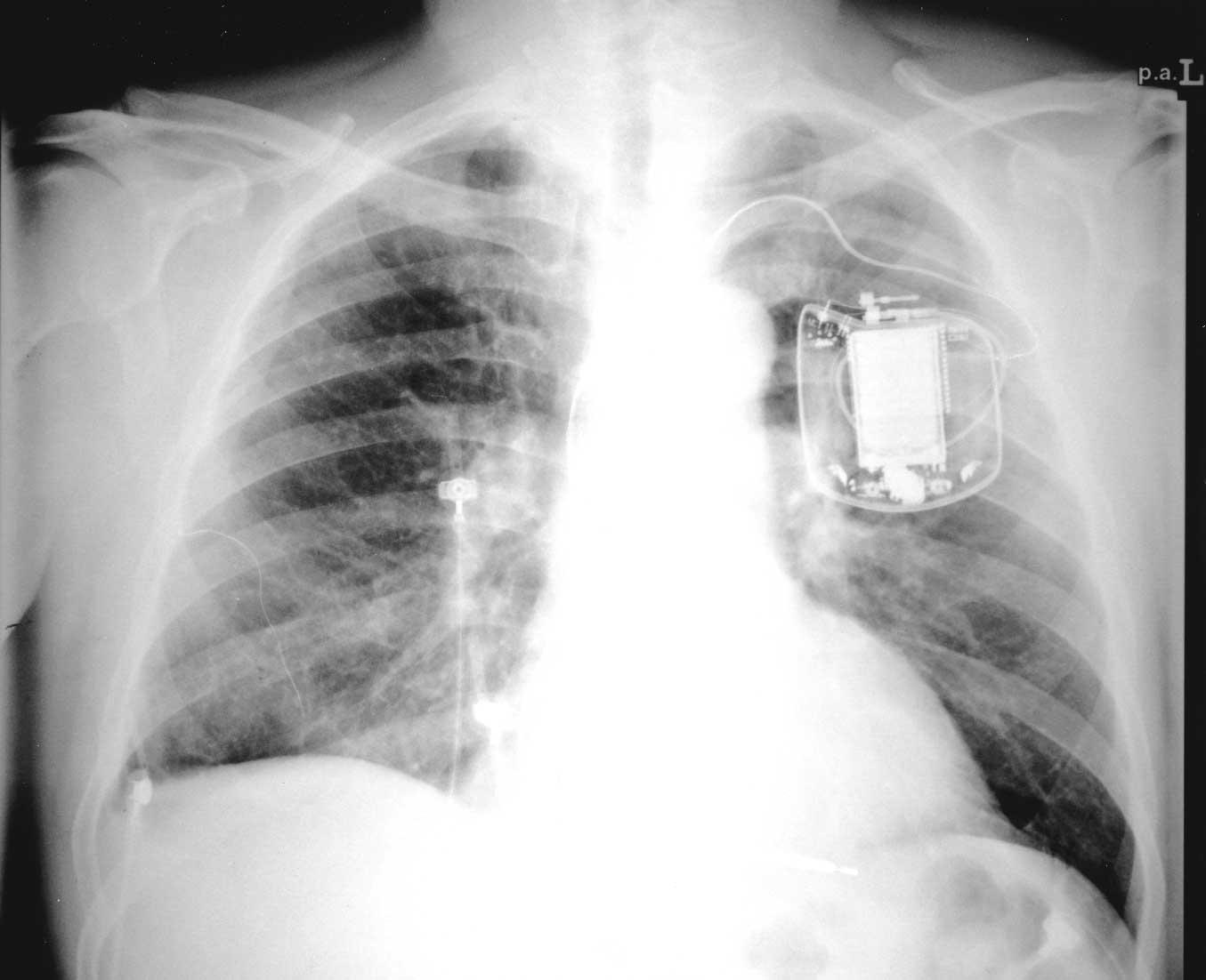Имплантируемые устройства для лечения тахиаритмий