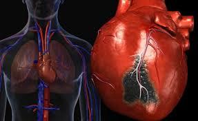 Частичная окклюзия коронарной артерии