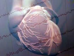 Большая талия повышает риск внезапной смерти от сердца