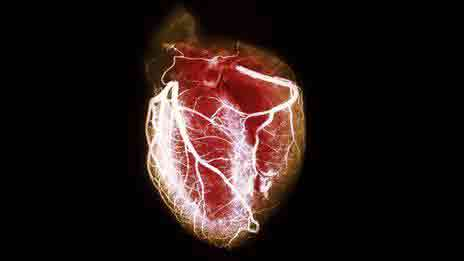 Разрывы сердца