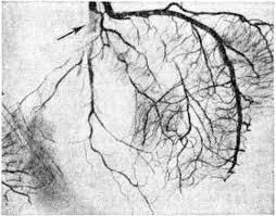Прижизненная диагностика инфаркта правого желудочка