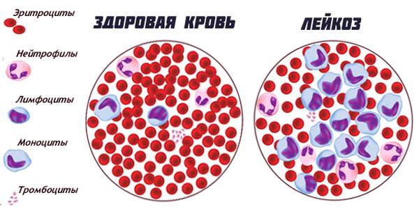 Альтернативное лечение при лейкозе