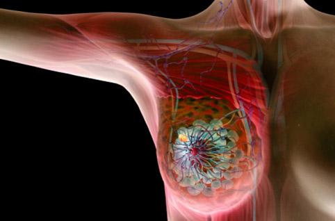 Заболевание молочных желез у женщин