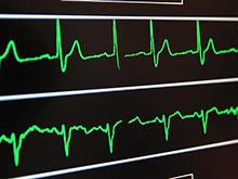 «Нормальное артериальное давление» оказалось не достаточно низким, по мнению врачей
