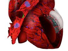 Необычная заплатка на сердце позволяет убрать последствия сердечного приступа