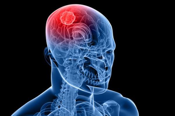 Гипертонический криз: признаки, симптомы, последствия