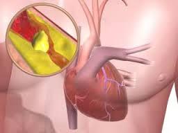 Сердечная недостаточность: Диагностика