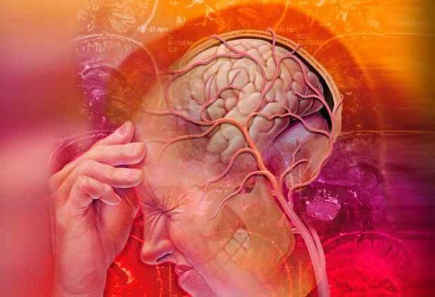 Что такое повышенное внутричерепное давление:особенности заболевания, способы выявления