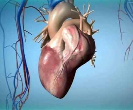 Опухоли сердца: причины, симптомы, диагностика, лечение