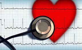 Фибрилляция желудочков: причины, симптомы, диагностика, лечение