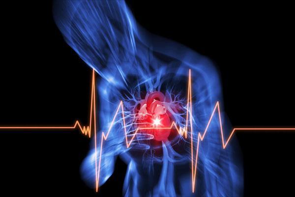 Стенокардия: обзор фактов заболевания, боль при стенокардии