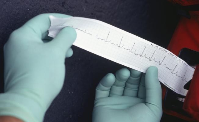 Вазоспастическая стенокардия: что это