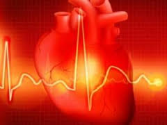 Ишемическая болезнь сердца: общие сведения