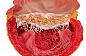 Что важно выяснить врачу при обнаружении артериальной гипертензии?