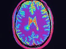 Открытие: когнитивно-поведенческая терапия может изменить объем мозга