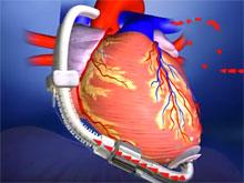 Изобретатели представили уникальное устройство для сердечников