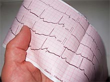 Повседневные дела приводят к смертям из-за проблем с сердцем среди женщин