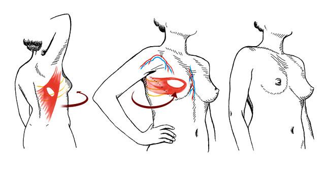 О форме груди