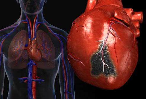 Лечение постинфарктного синдрома