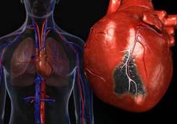 Патофизиология неосложненного инфаркта миокарда