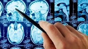 Шведские ученые открыли ген, отвечающий за инсульт