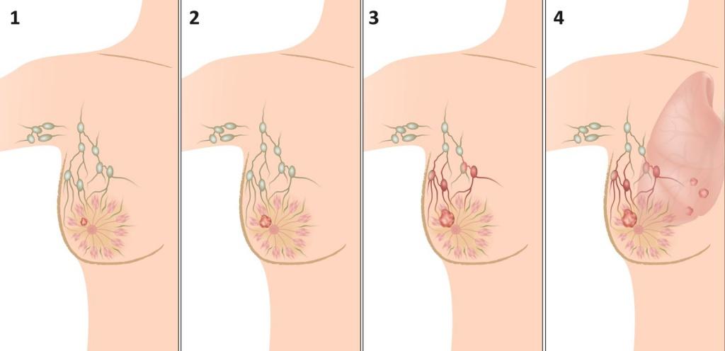 Рак молочной железы фото, симптомы, лечение