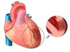 Течение неосложненного инфаркта миокарда