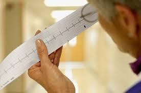 Приступ мерцательной аритмии (Электроимпульсное лечение)