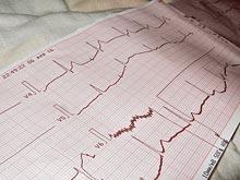 «Тихие» сердечные приступы в три раза опаснее обычных