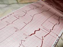 Аритмия сердечная. Сердцебиение