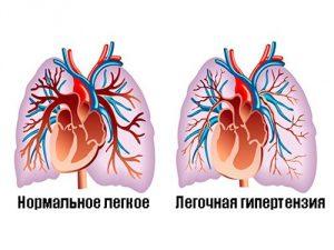 В Новосибирске победили легочную гипертензию