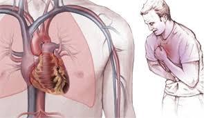 Лечение стенокардии при сочетанной патологии (Гипотензивные средства)