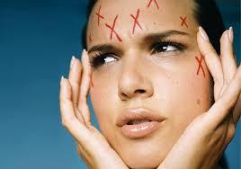Пять советов при лечении возрастного акне