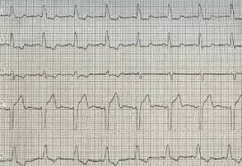 Клиника нарушений внутрижелудочковой проводимости при инфаркте миокарда