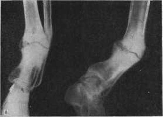 Ложный сустав — что это, причины и лечение
