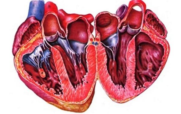 Что происходит с сердцем при развитии бактериального эндокардита