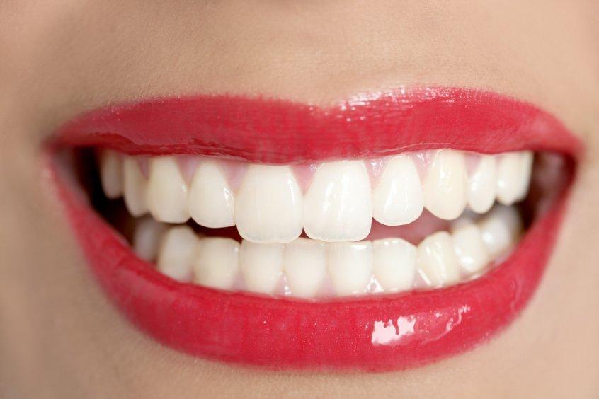 Когда своих зубов не хватает