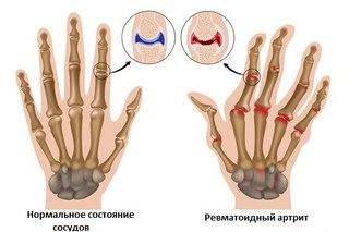 Ревматоидный артрит. Патогенез и этиология