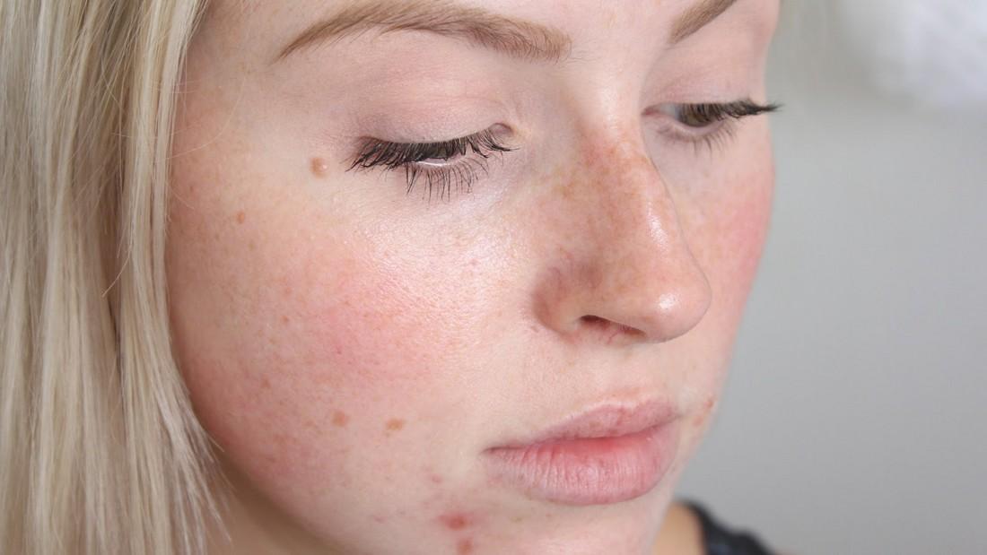 Прыщи на лице: косметологическая или медицинская проблема