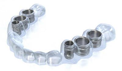 Технология имплантации зубов по хирургическому шаблону