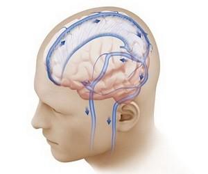 Внешняя среда и внутричерепная гипертензия